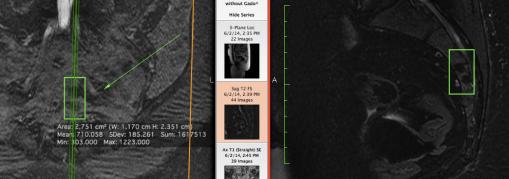 Screen Shot 2015-06-13 at 5.57.53 PM